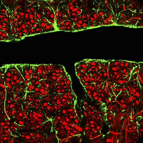 How Young Blood Rejuvenates the Brain