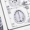 Series of MRI (Magnetic Resonance Imaging) brain scans.